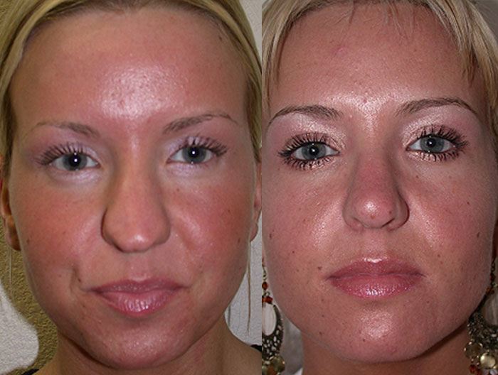 eyelid-lift-lg