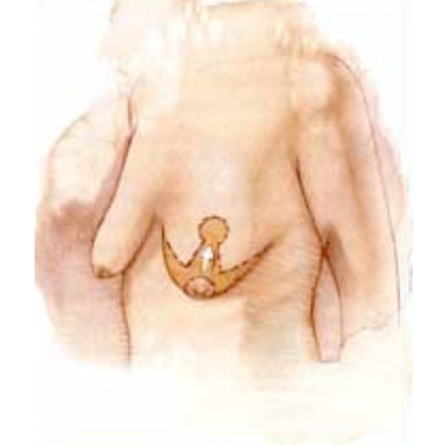 breast-lift-1