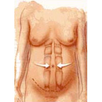 tummy-tuck-2