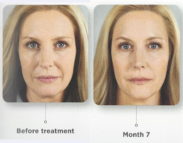 collagen-before-after-12
