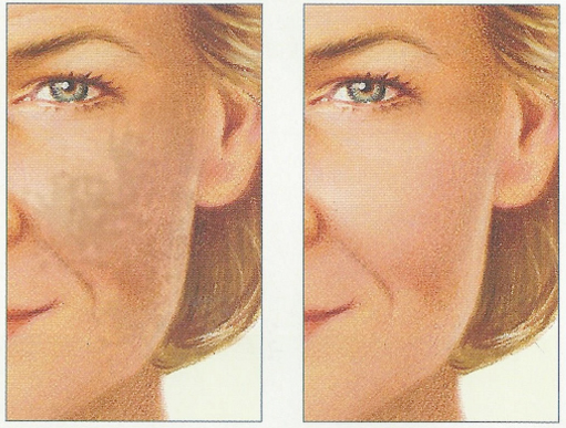 chemical-peel-before-after