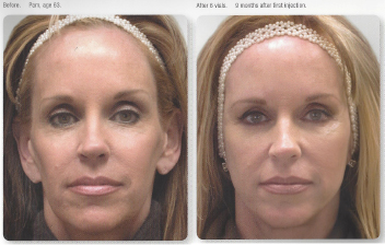 collagen-before-after-1