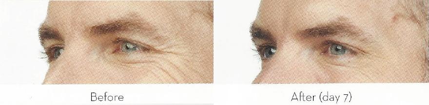facial-enhancement