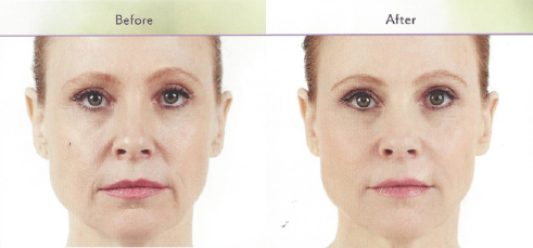 injectables-before-after3