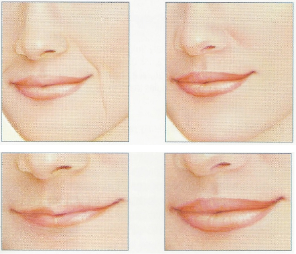 lip-aug-before-afters