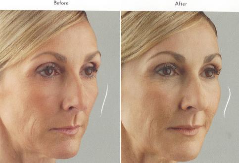 mid-face-enhancement