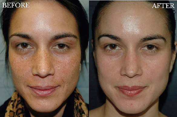 skin-surface-before-after