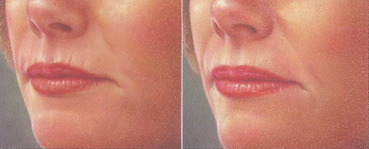 thin-fillers-before-after-2