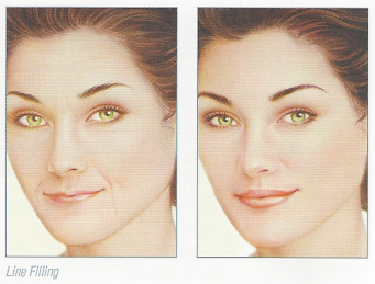 thin-fillers-before-after