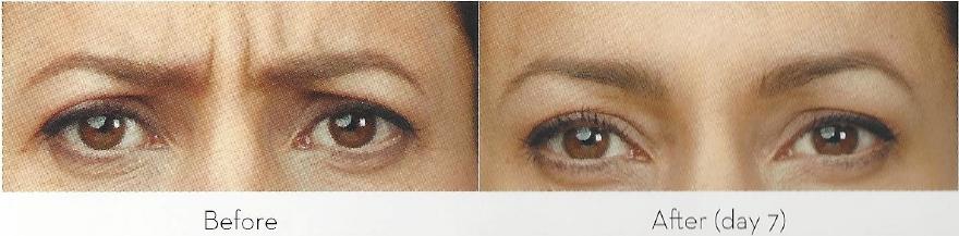 upper-facial-enhancement